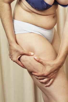 Frau, die unter Zellulitis leidet
