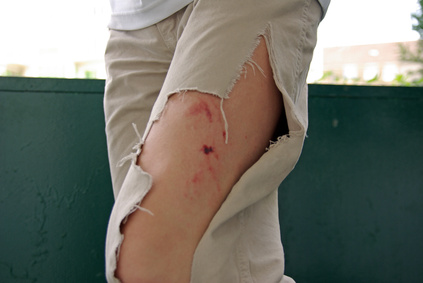 Verletzung am Bein