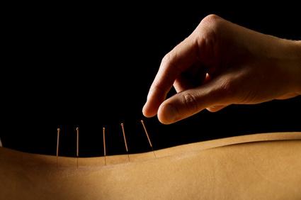 traditionelle Akupunktur mit Nadeln
