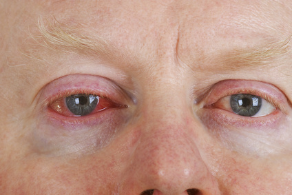 Mann mit roten Augen