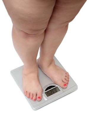 übergewichtige Frauenbeine