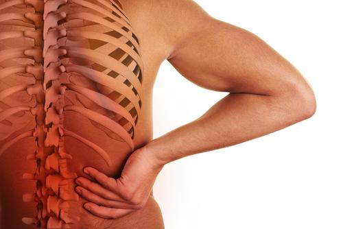 Bandscheibenvorfall Rückenschmerzen Sport