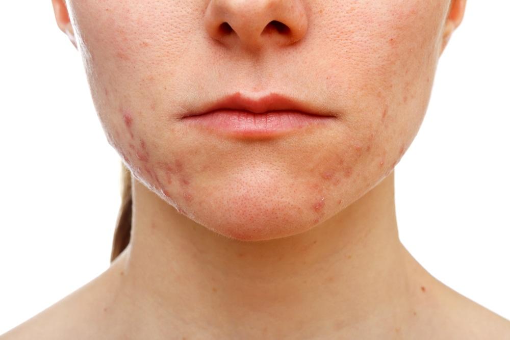 Adolescent girl suffering in acne